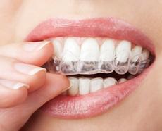 clareamento-dental-caseiro.jpg